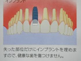 implant-aq02