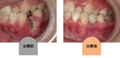 implant-aq04