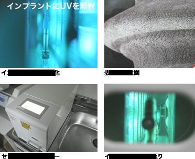 implant-hikari1