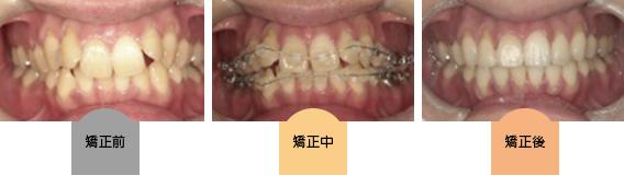 kyosei-demon05